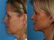 Body Oasis Laser Aesthetics Acquires Accusculpt Laser Assisted...